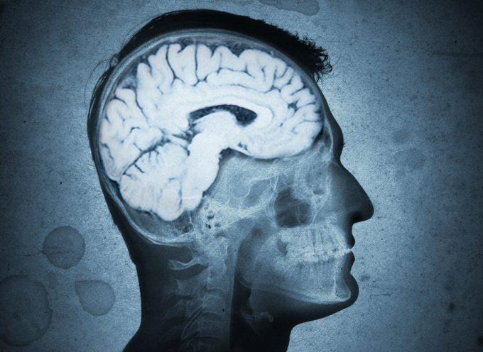 Il Parassita Cerebrale vi divorerà!